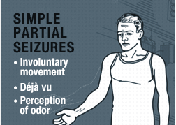 Types of Seizures: Simple Partial Seizures