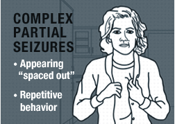 Types of Seizures: Complex Partial Seizures